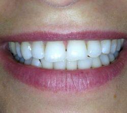 dopo-sbiancamento-denti-1